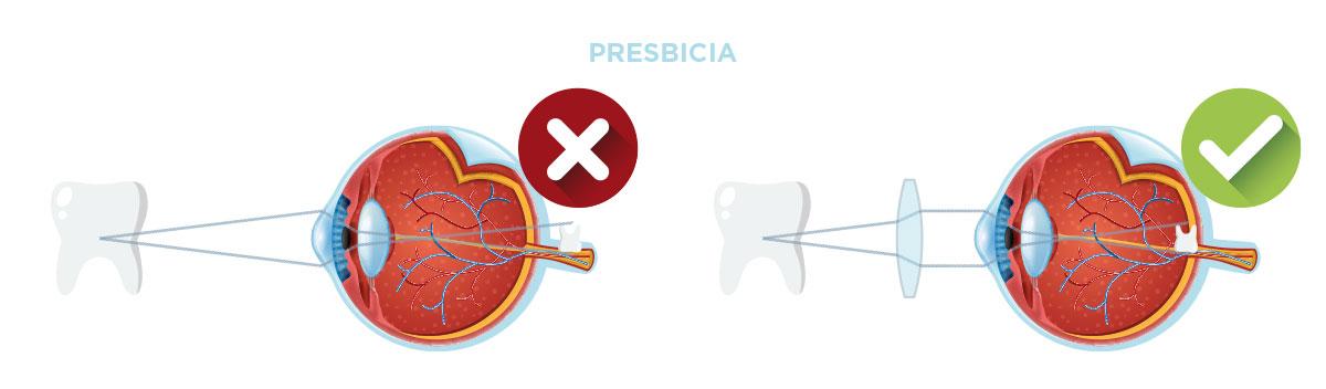 defecto-refractivo-presbicia