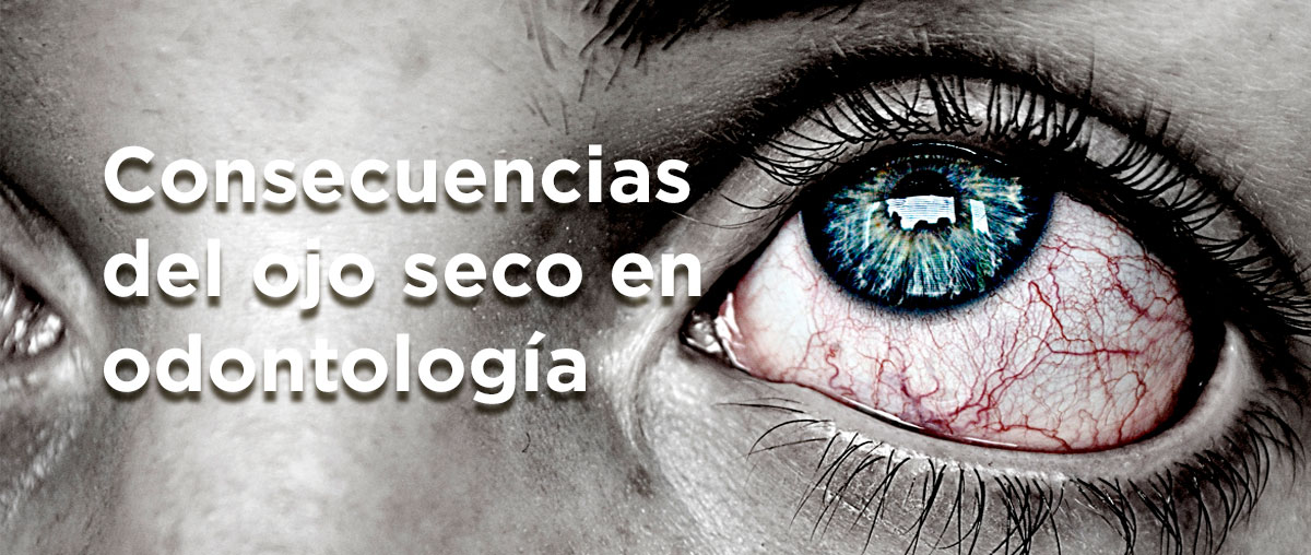Consecuencias del ojo seco en odontología